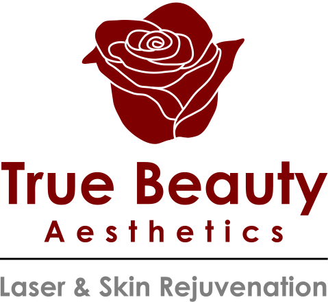 Laser Wart & Verruca Removal | True Beauty Aesthetics